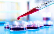 برای انجام آزمایشهای پزشکی دورهای در حد توان فرهنگسازی کنید