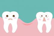 شگردهای خندیدن وقتی قرار است جای خالی دو دندان را از دید همه مخفی کنید